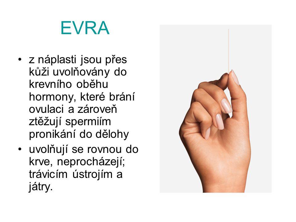 EVRA z náplasti jsou přes kůži uvolňovány do krevního oběhu hormony, které brání ovulaci a zároveň ztěžují spermiím pronikání do dělohy.