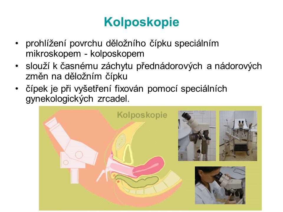 Kolposkopie prohlížení povrchu děložního čípku speciálním mikroskopem - kolposkopem.
