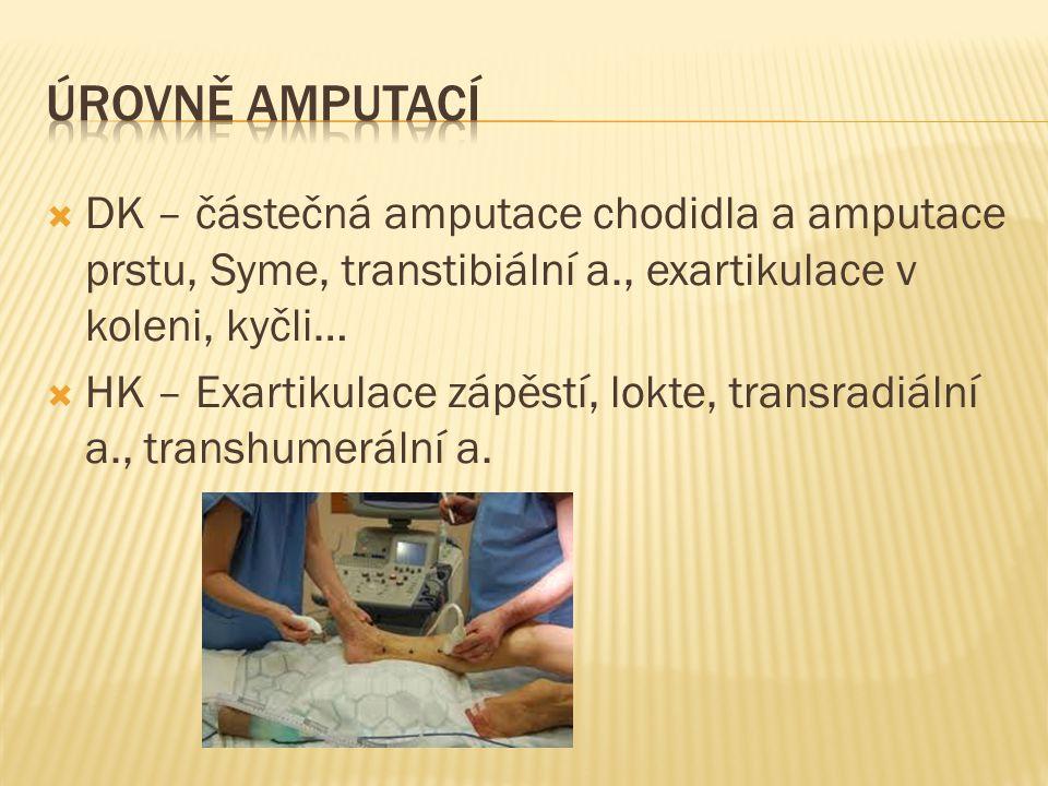 Úrovně amputací DK – částečná amputace chodidla a amputace prstu, Syme, transtibiální a., exartikulace v koleni, kyčli…