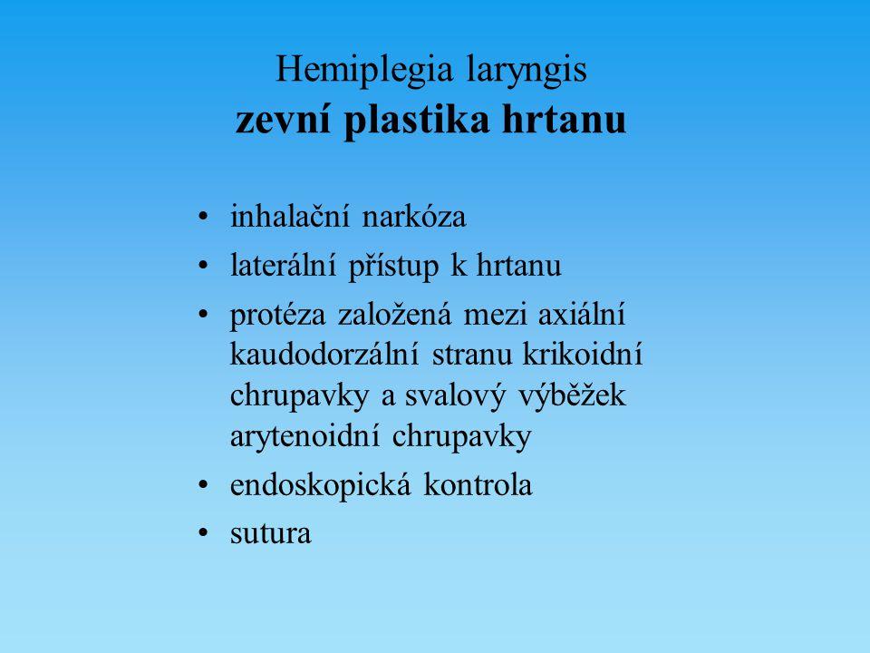 Hemiplegia laryngis zevní plastika hrtanu