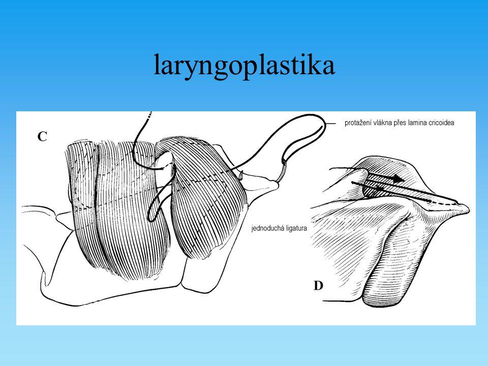 laryngoplastika