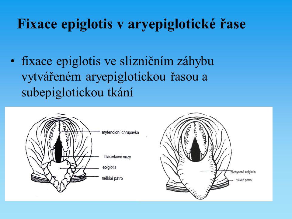 Fixace epiglotis v aryepiglotické řase