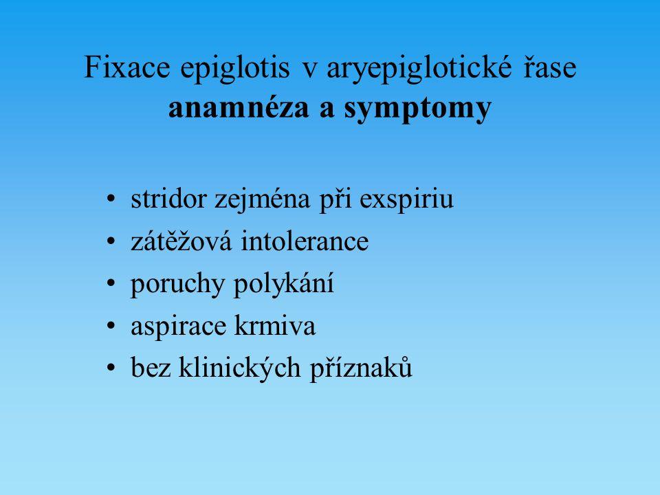 Fixace epiglotis v aryepiglotické řase anamnéza a symptomy