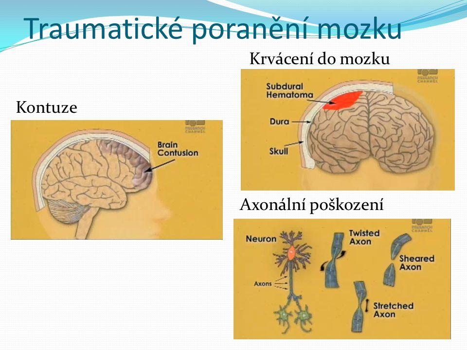 Traumatické poranění mozku
