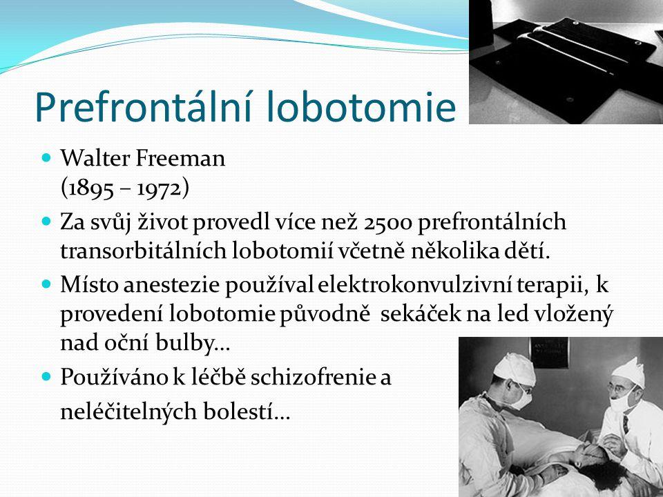 Prefrontální lobotomie