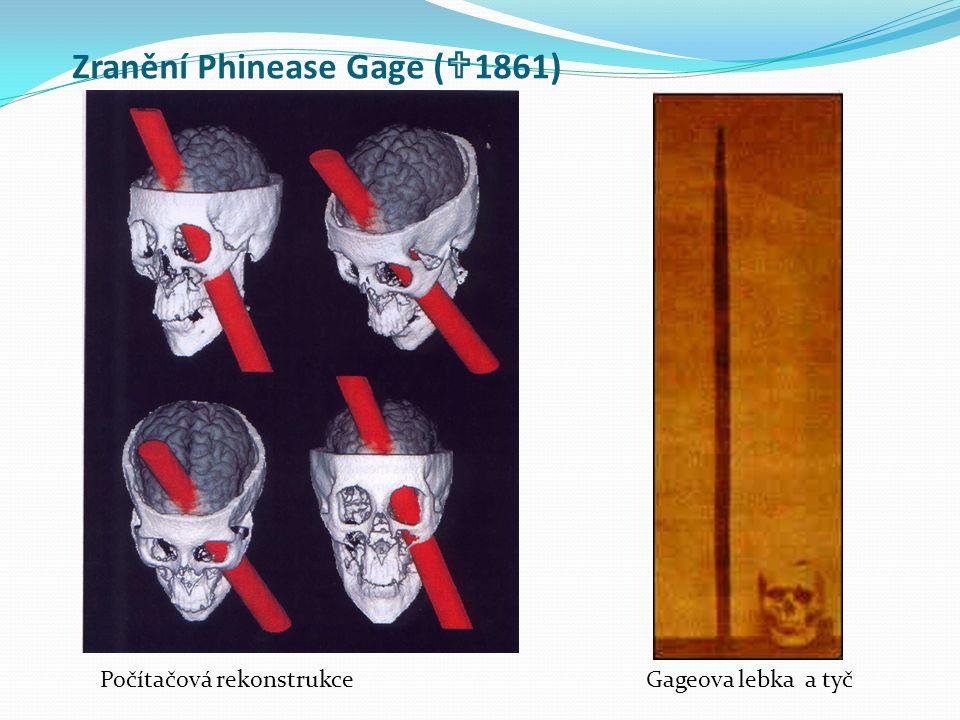 Zranění Phinease Gage (1861)