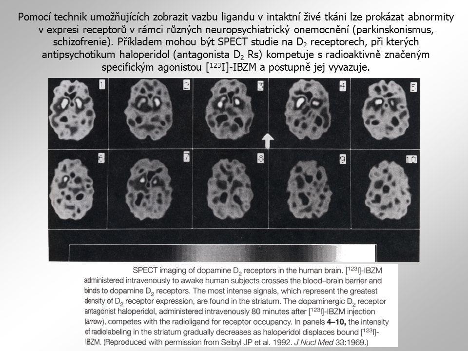 Pomocí technik umožňujících zobrazit vazbu ligandu v intaktní živé tkáni lze prokázat abnormity v expresi receptorů v rámci různých neuropsychiatrický onemocnění (parkinskonismus, schizofrenie).