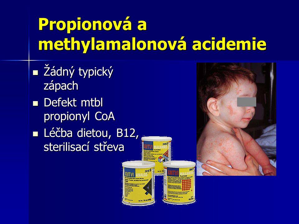 Propionová a methylamalonová acidemie
