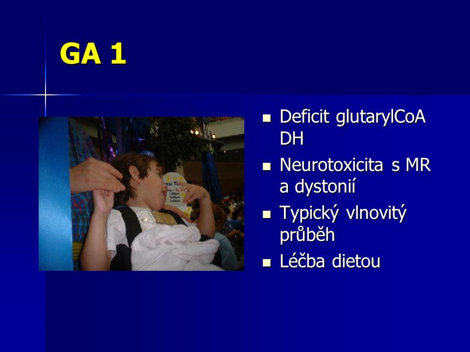 GA 1 Deficit glutarylCoA DH Neurotoxicita s MR a dystonií