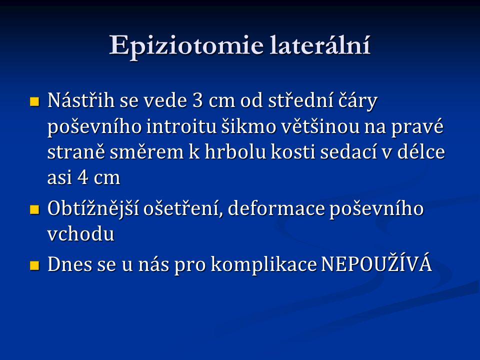Epiziotomie laterální