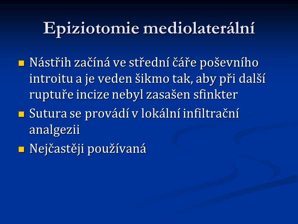 Epiziotomie mediolaterální