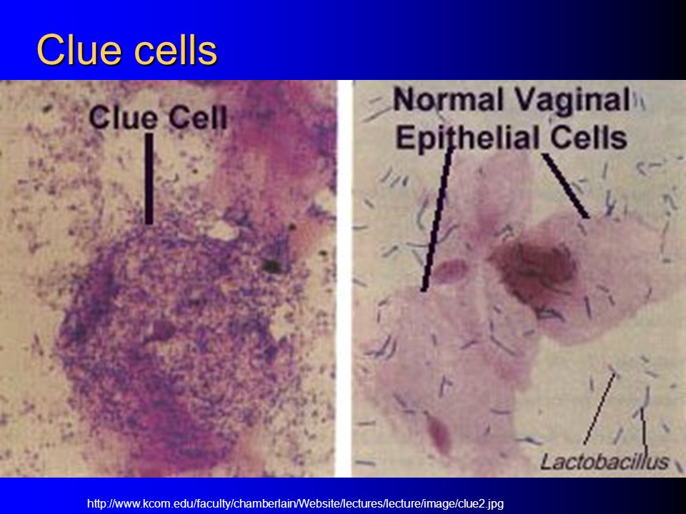 Clue cells http://www.kcom.edu/faculty/chamberlain/Website/lectures/lecture/image/clue2.jpg