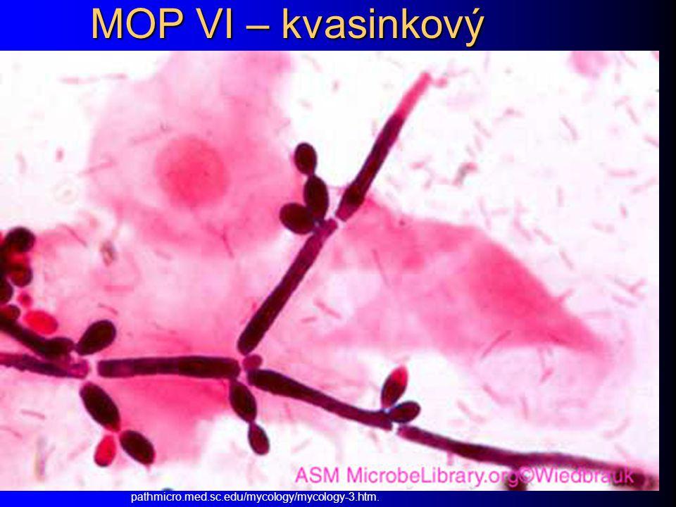 MOP VI – kvasinkový pathmicro.med.sc.edu/mycology/mycology-3.htm.