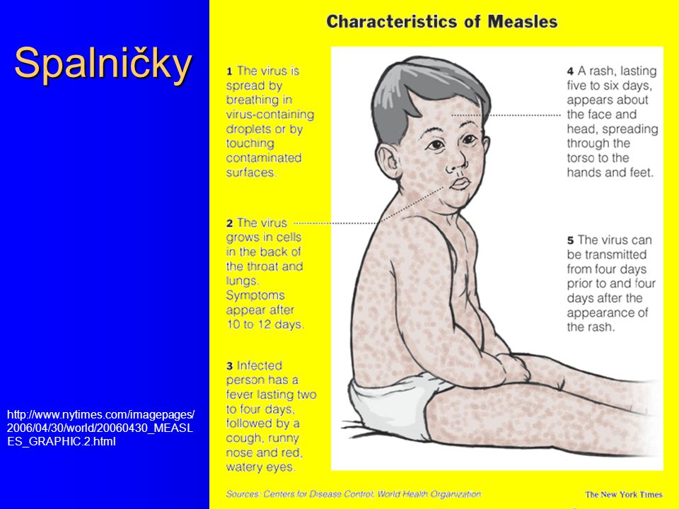 Spalničky http://www.nytimes.com/imagepages/2006/04/30/world/20060430_MEASLES_GRAPHIC.2.html