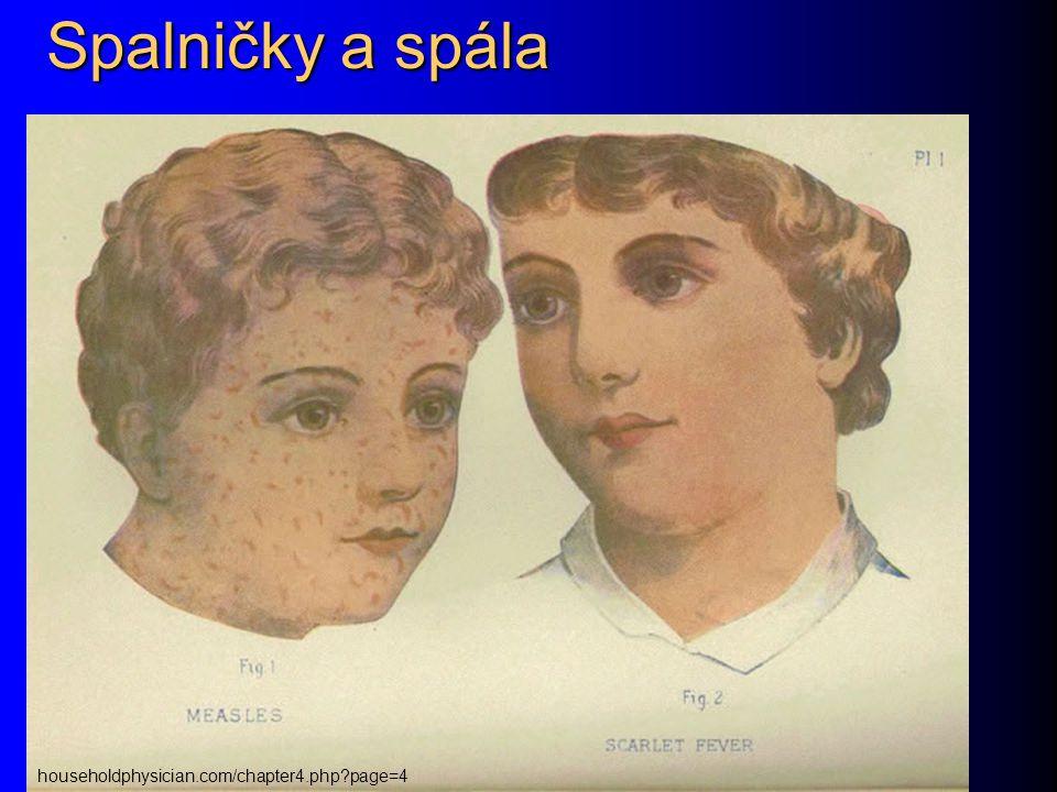Spalničky a spála householdphysician.com/chapter4.php page=4