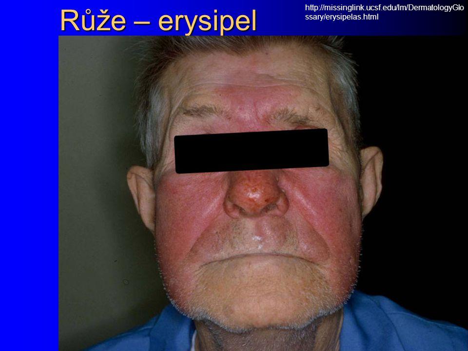 Růže – erysipel http://missinglink.ucsf.edu/lm/DermatologyGlossary/erysipelas.html