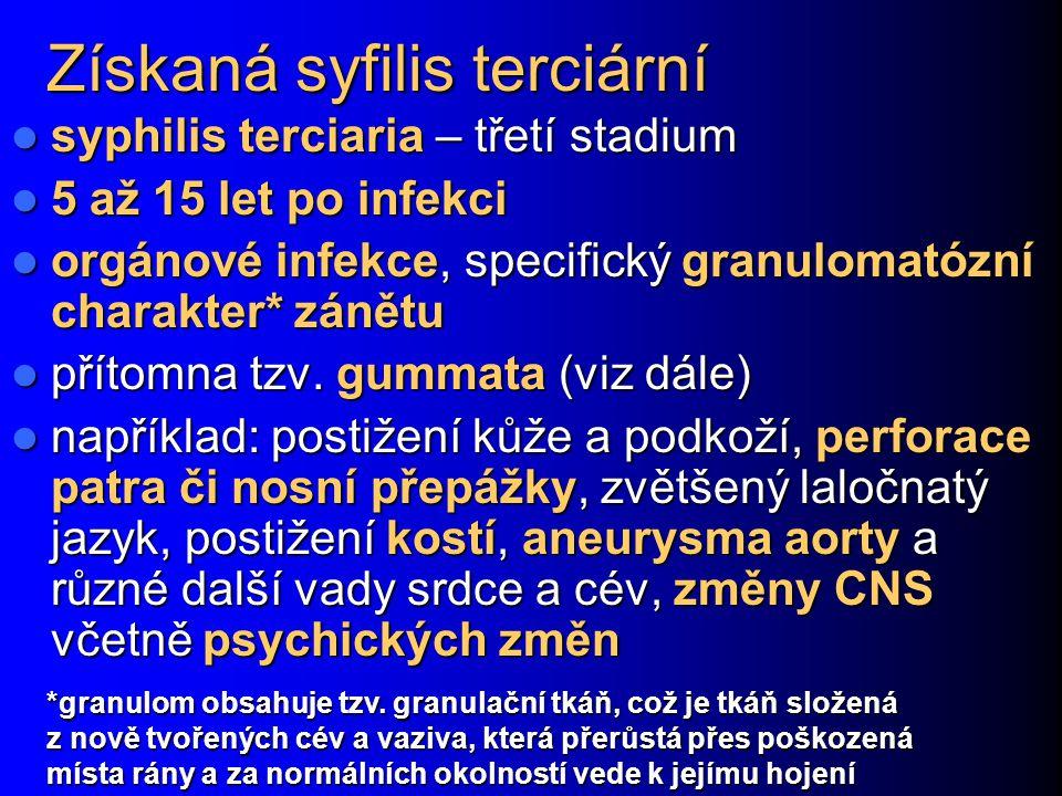 Získaná syfilis terciární