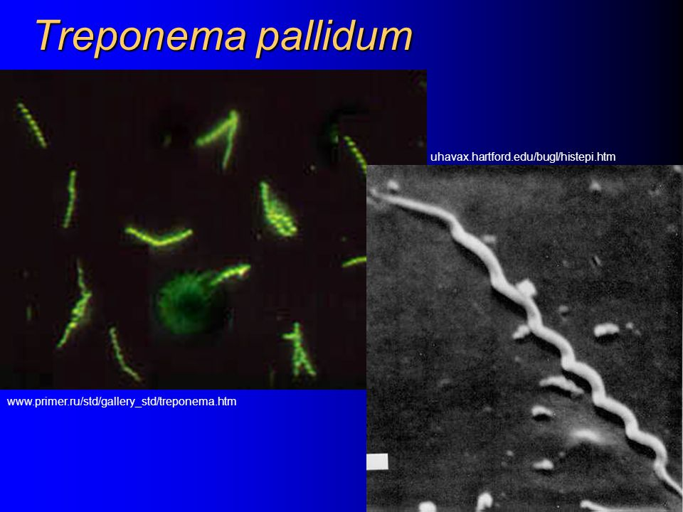 Treponema pallidum uhavax.hartford.edu/bugl/histepi.htm