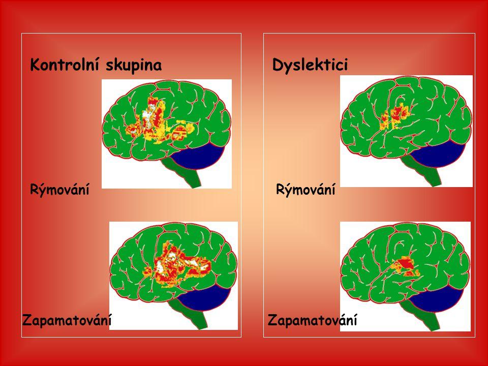 Kontrolní skupina Dyslektici Rýmování Rýmování Zapamatování