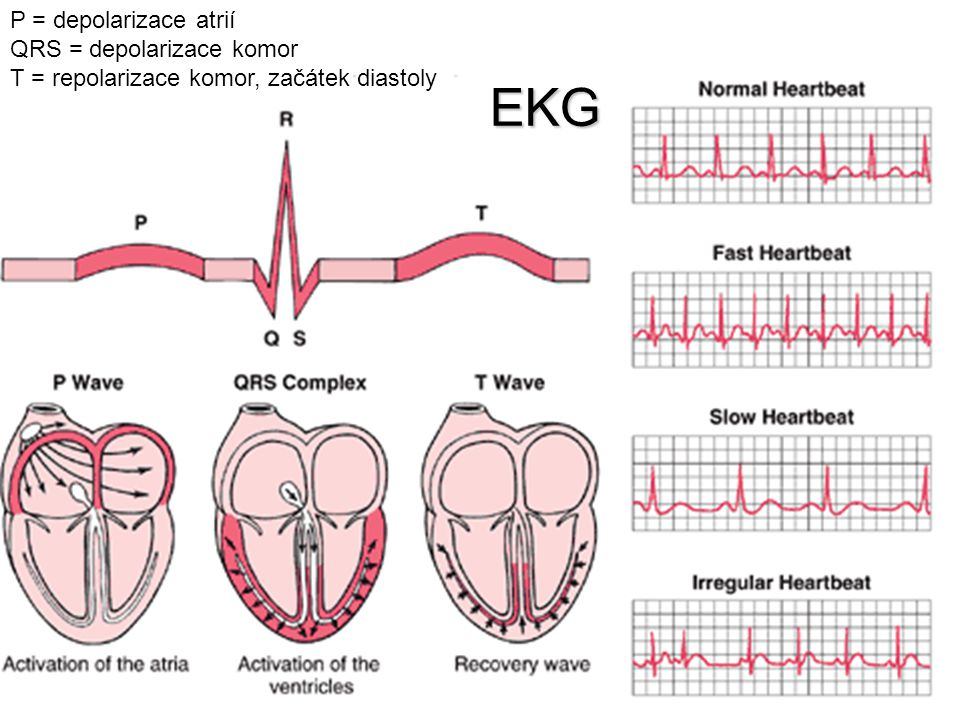 EKG P = depolarizace atrií QRS = depolarizace komor