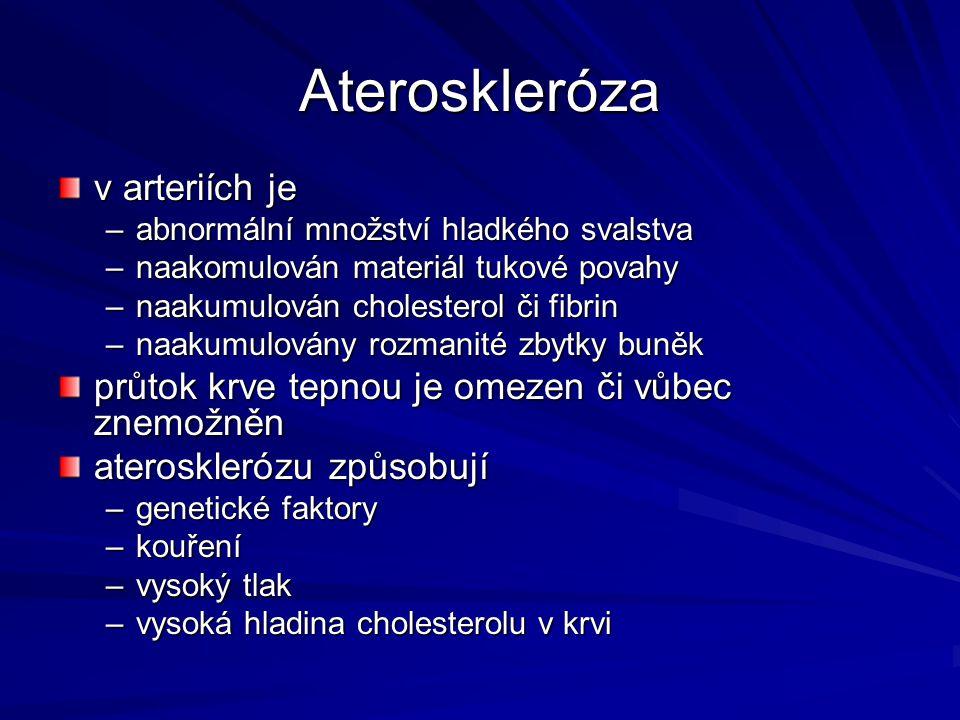 Ateroskleróza v arteriích je