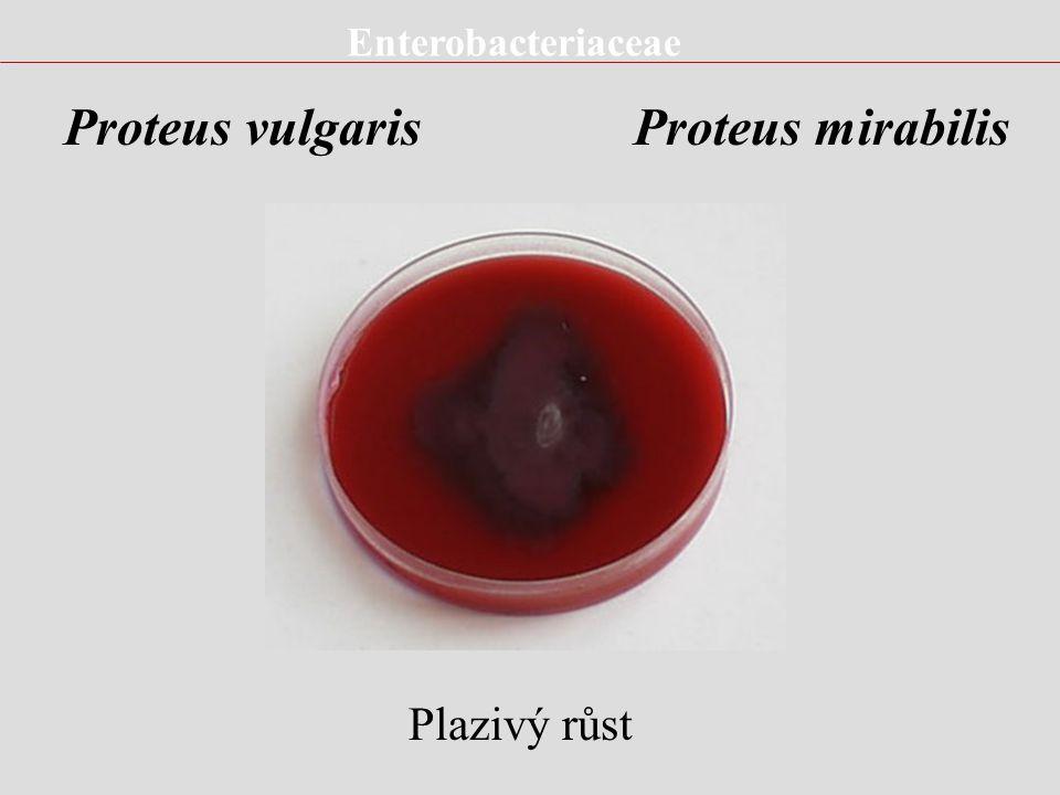Proteus vulgaris Proteus mirabilis