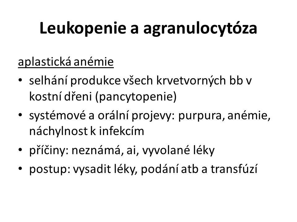 Leukopenie a agranulocytóza