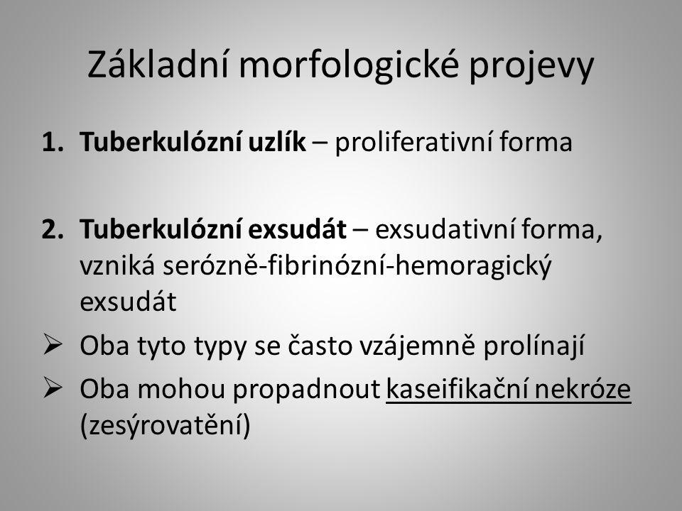 Základní morfologické projevy