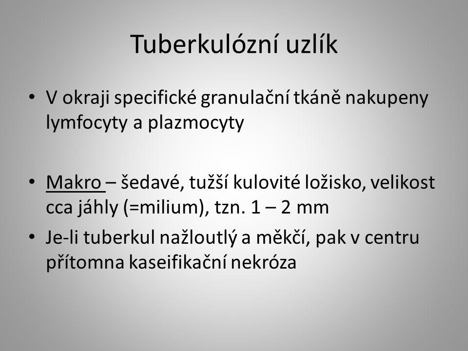 Tuberkulózní uzlík V okraji specifické granulační tkáně nakupeny lymfocyty a plazmocyty.