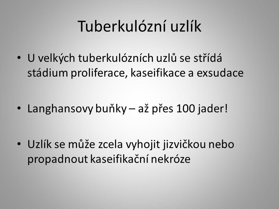Tuberkulózní uzlík U velkých tuberkulózních uzlů se střídá stádium proliferace, kaseifikace a exsudace.