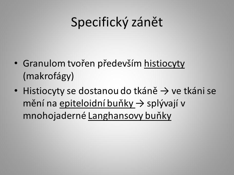Specifický zánět Granulom tvořen především histiocyty (makrofágy)
