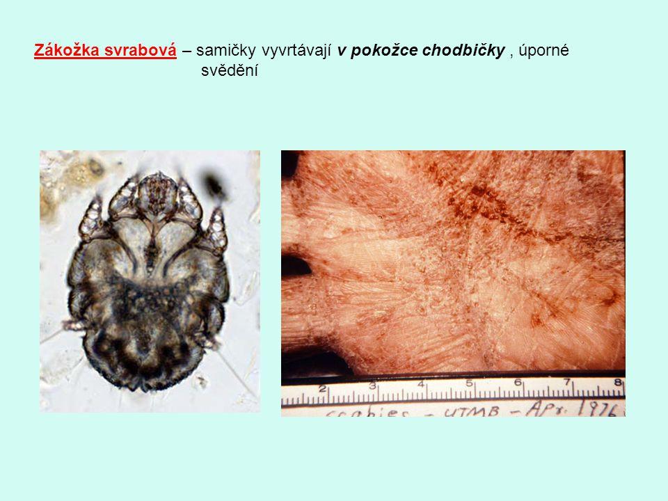 Zákožka svrabová – samičky vyvrtávají v pokožce chodbičky , úporné