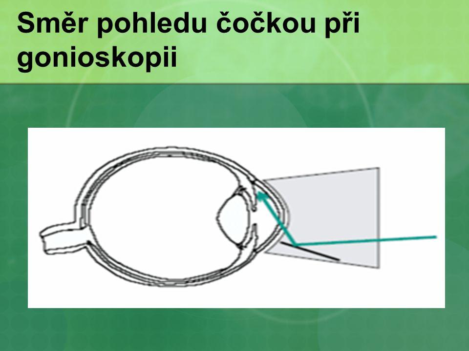 Směr pohledu čočkou při gonioskopii
