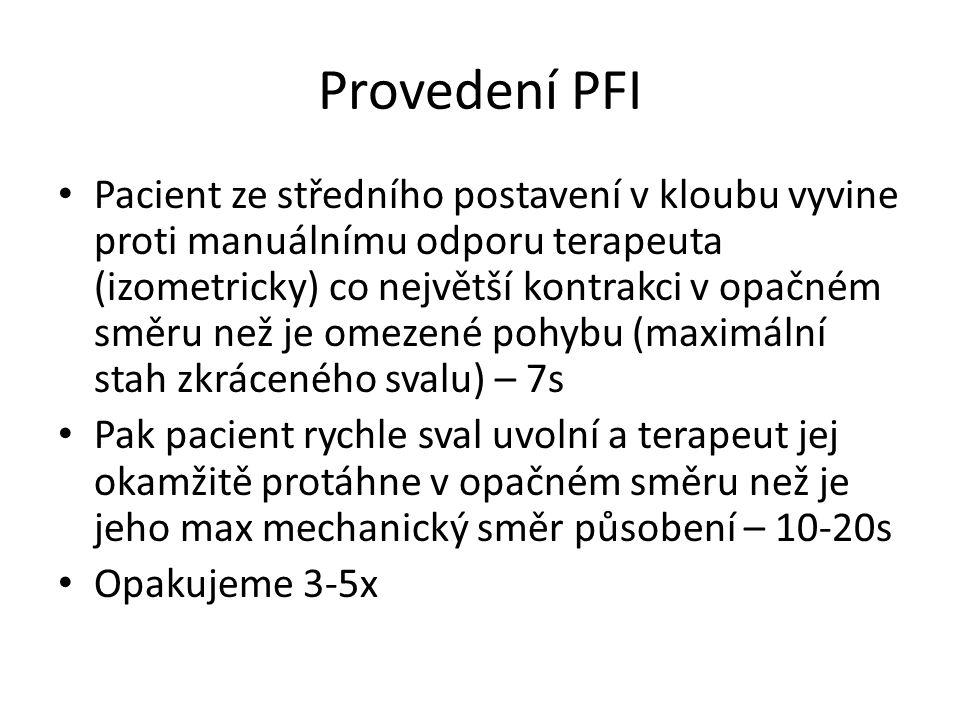 Provedení PFI