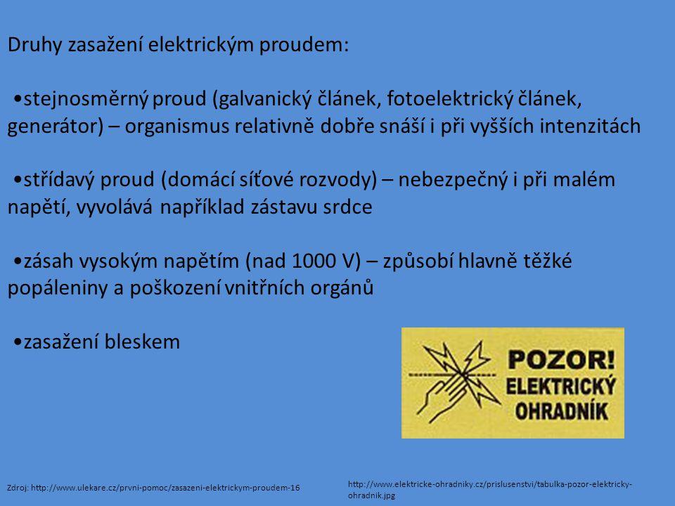 Druhy zasažení elektrickým proudem: