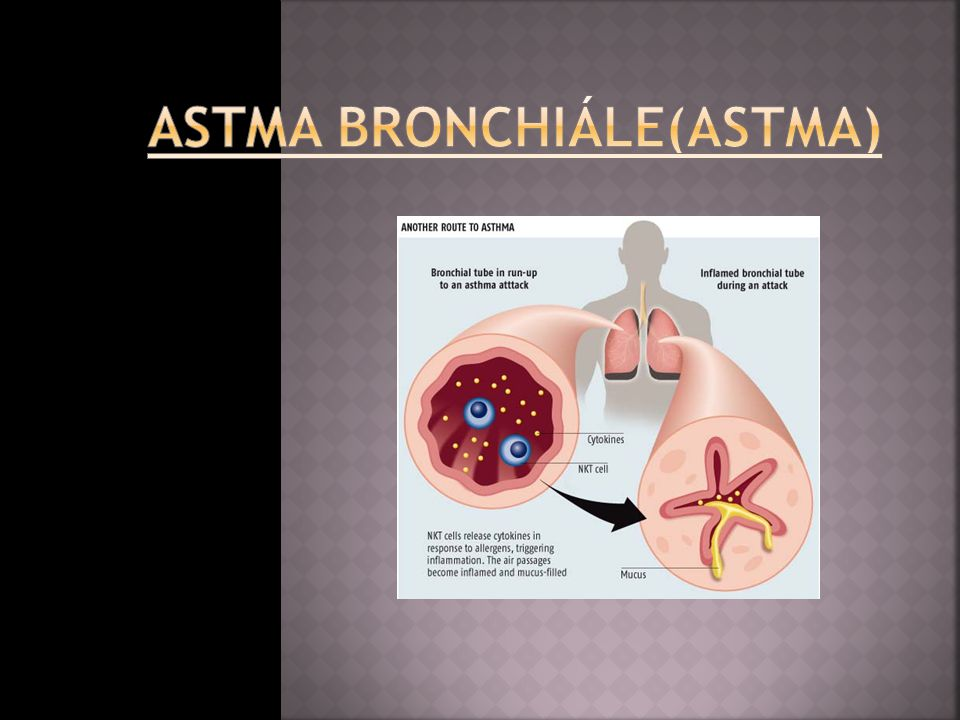 Astma bronchiále(astma)