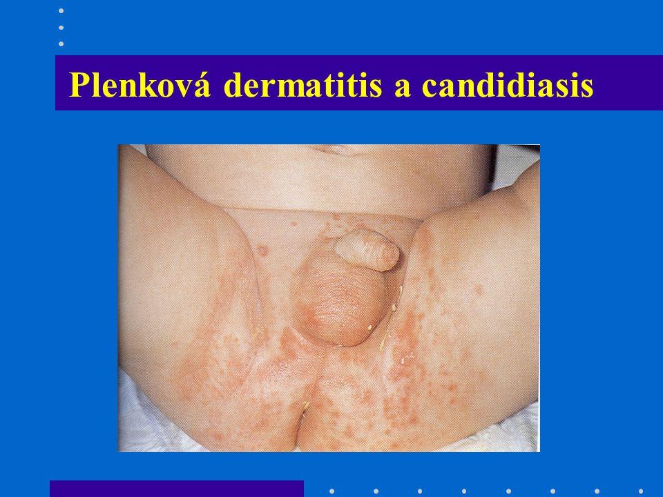 Plenková dermatitis a candidiasis