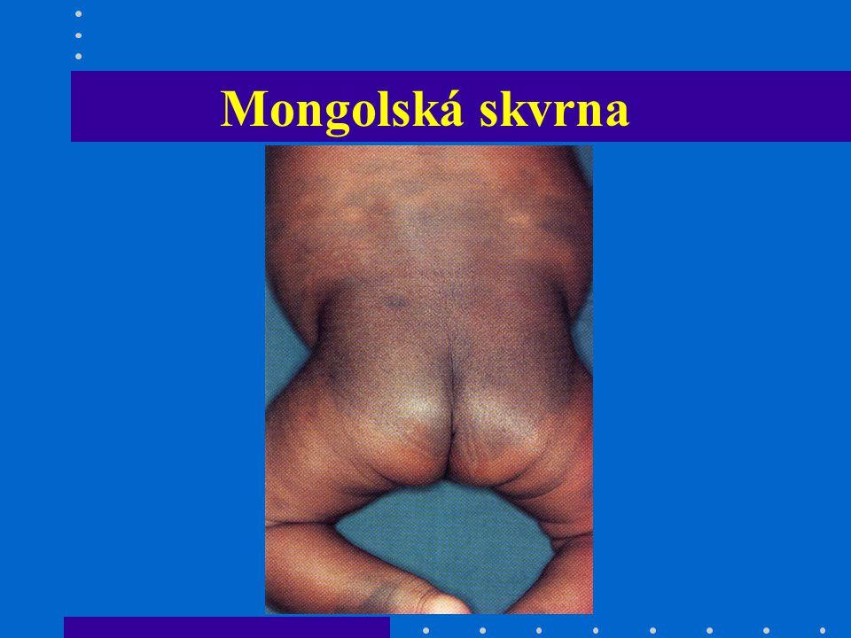 Mongolská skvrna