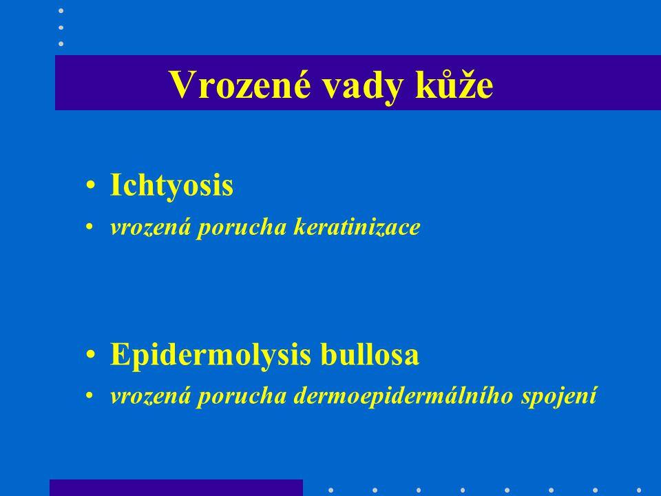 Vrozené vady kůže Ichtyosis Epidermolysis bullosa