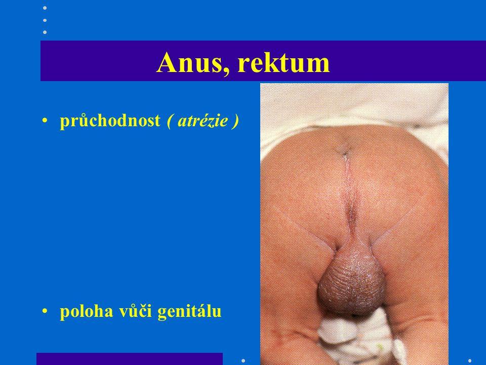 Anus, rektum průchodnost ( atrézie ) poloha vůči genitálu