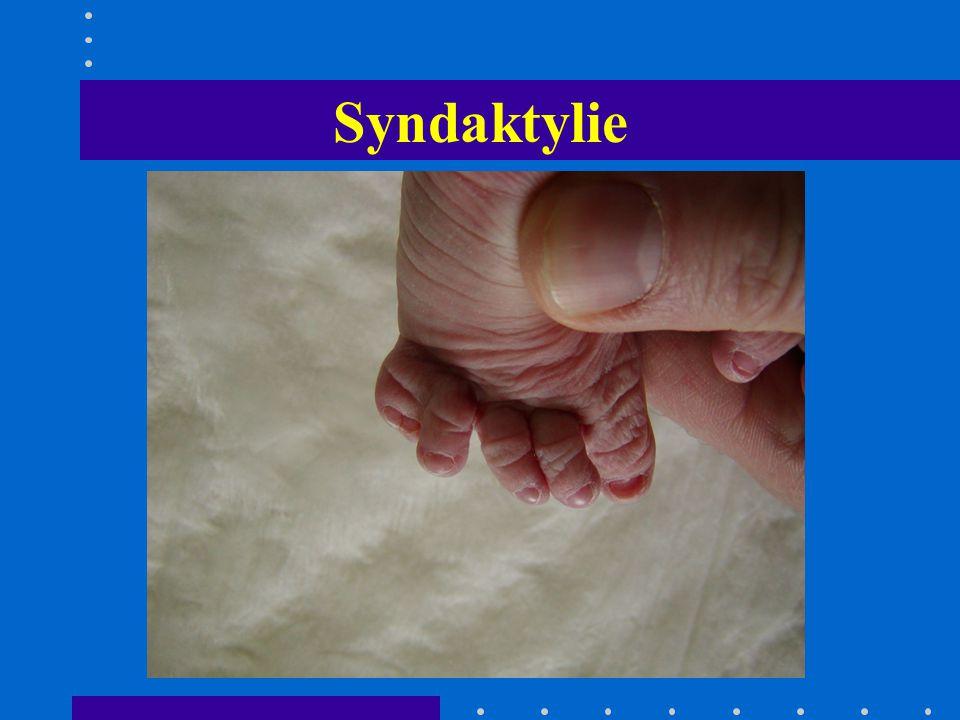 Syndaktylie