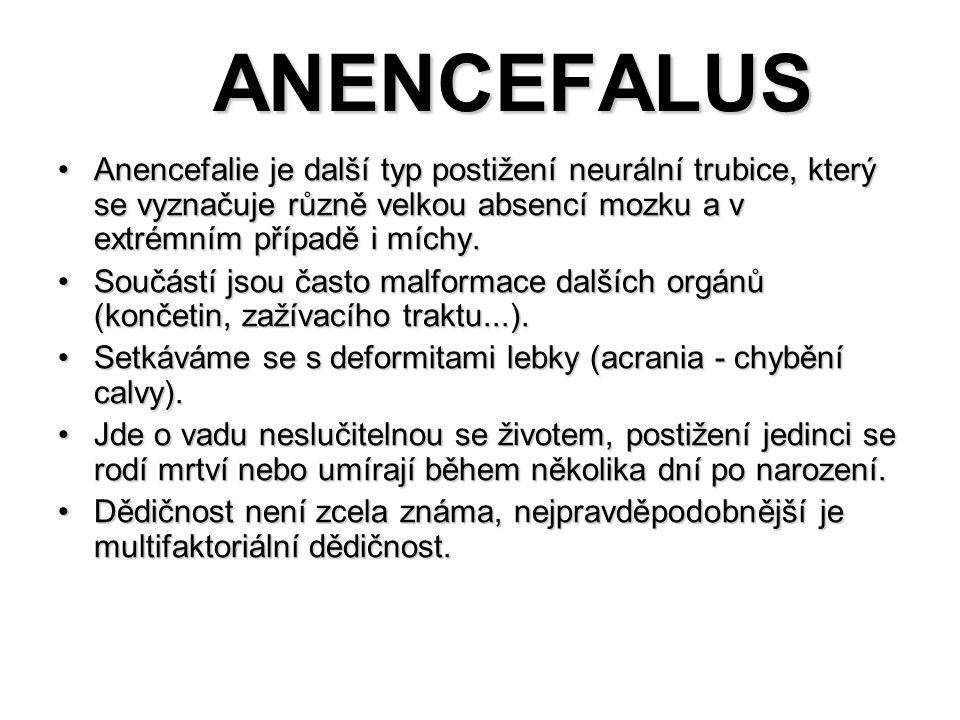 ANENCEFALUS Anencefalie je další typ postižení neurální trubice, který se vyznačuje různě velkou absencí mozku a v extrémním případě i míchy.