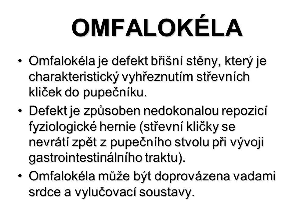 OMFALOKÉLA Omfalokéla je defekt břišní stěny, který je charakteristický vyhřeznutím střevních kliček do pupečníku.