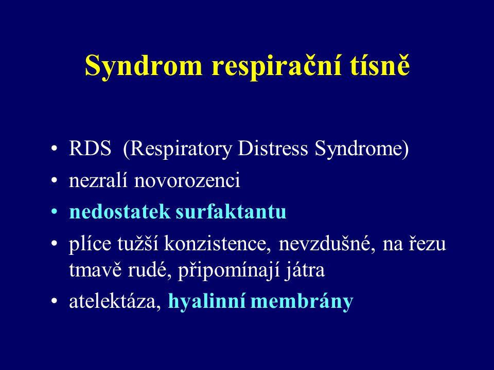 Syndrom respirační tísně