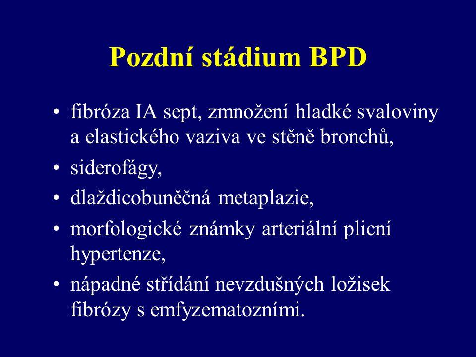 Pozdní stádium BPD fibróza IA sept, zmnožení hladké svaloviny a elastického vaziva ve stěně bronchů,