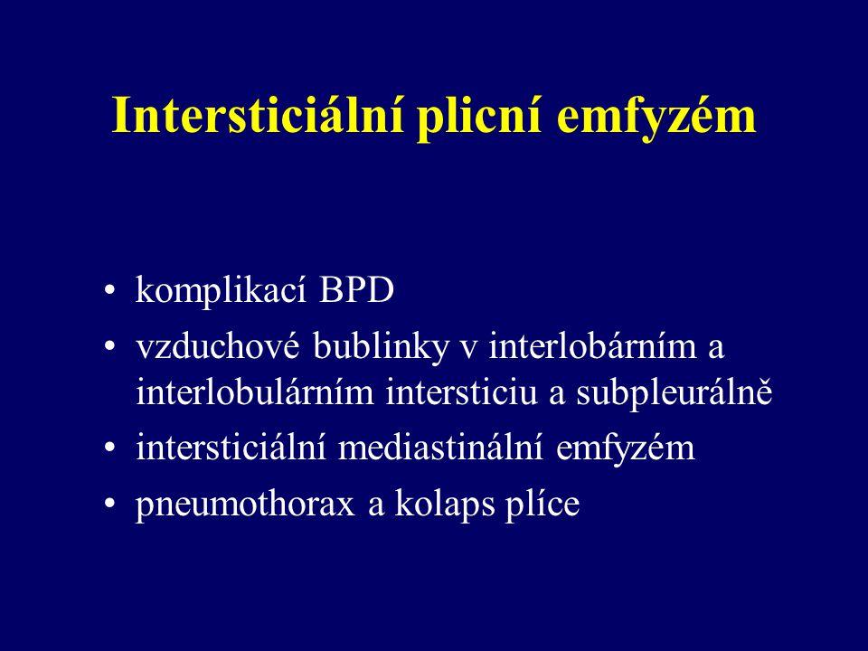Intersticiální plicní emfyzém