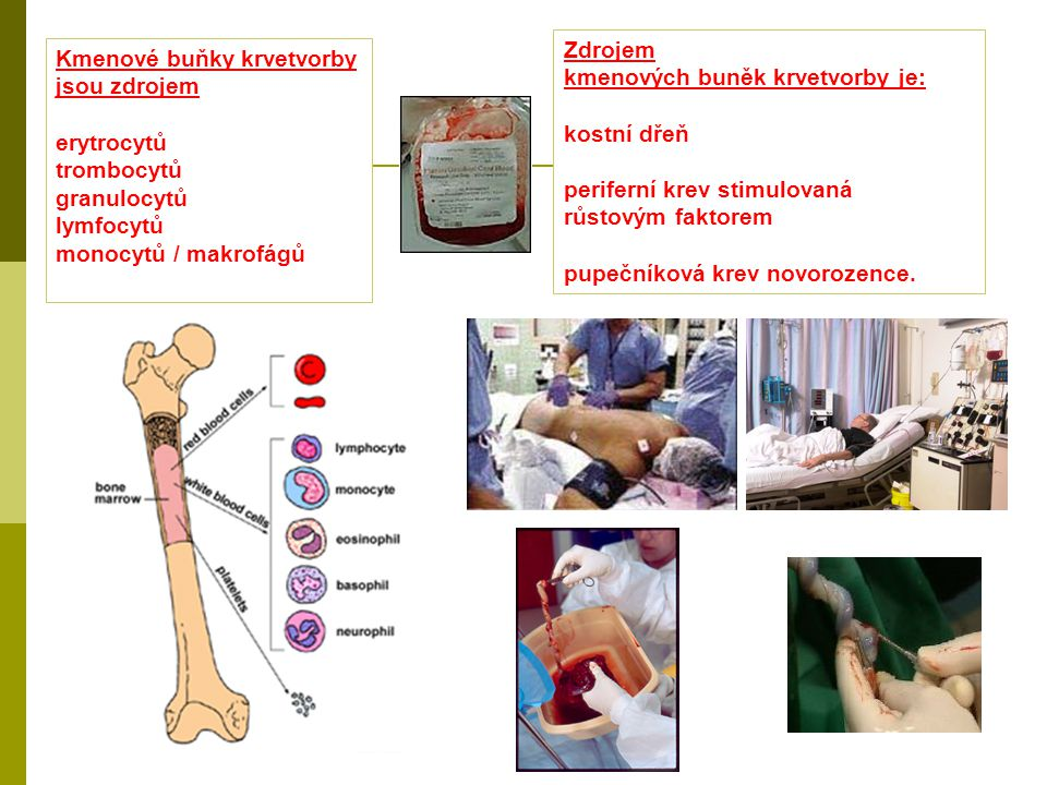 Zdrojem kmenových buněk krvetvorby je: kostní dřeň. periferní krev stimulovaná. růstovým faktorem.