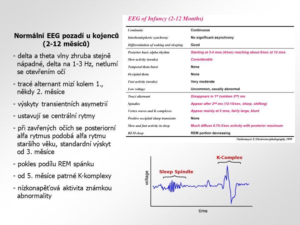Normální EEG pozadí u kojenců (2-12 měsíců)
