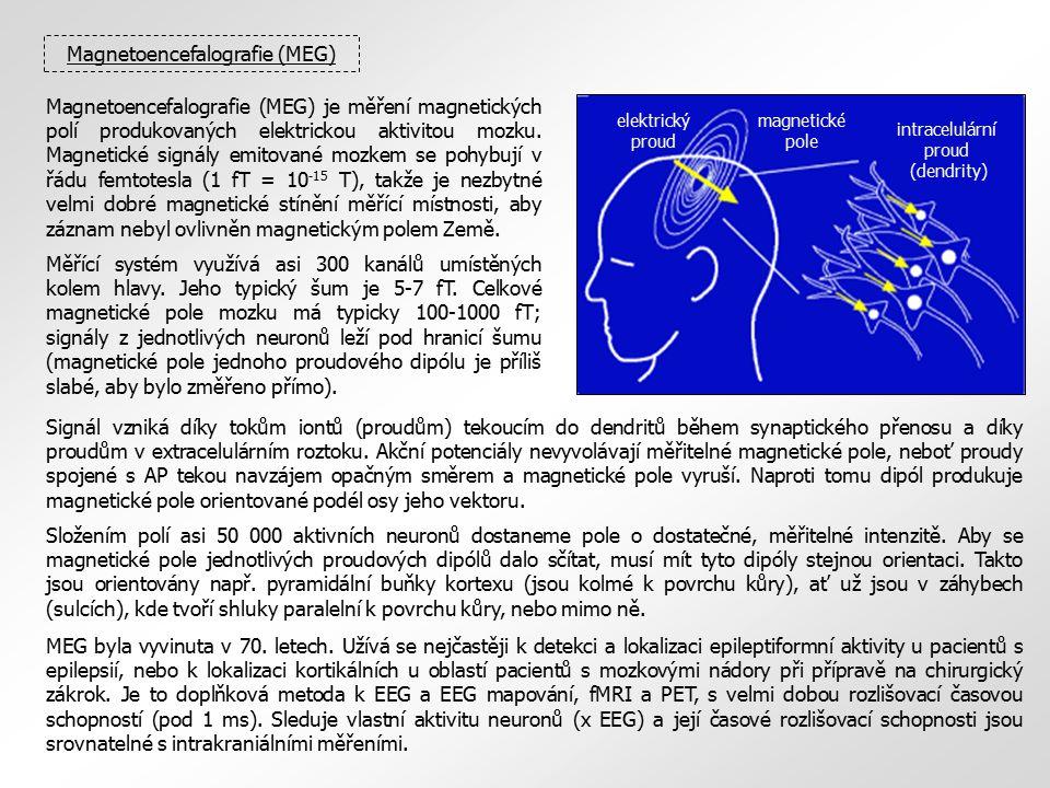 Magnetoencefalografie (MEG)