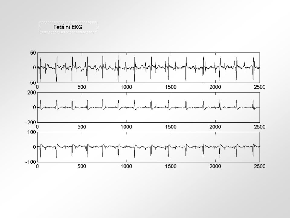 Fetální EKG